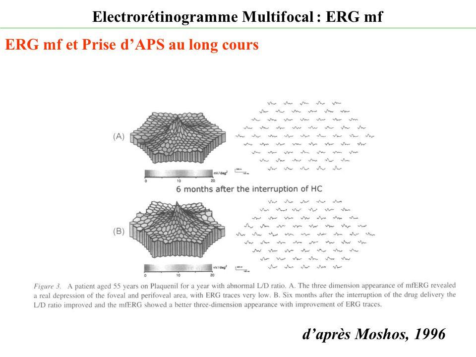 d'après Moshos, 1996 Electrorétinogramme Multifocal : ERG mf ERG mf et Prise d'APS au long cours