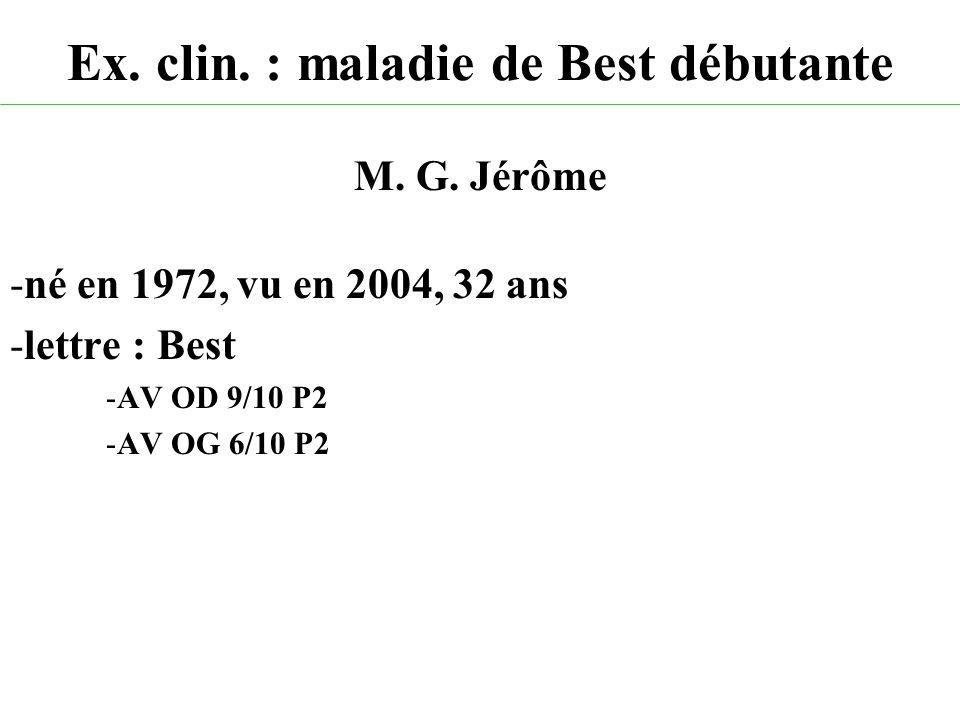 Ex. clin. : maladie de Best débutante M. G. Jérôme -né en 1972, vu en 2004, 32 ans -lettre : Best -AV OD 9/10 P2 -AV OG 6/10 P2