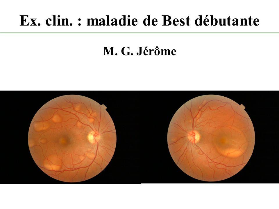 Ex. clin. : maladie de Best débutante M. G. Jérôme