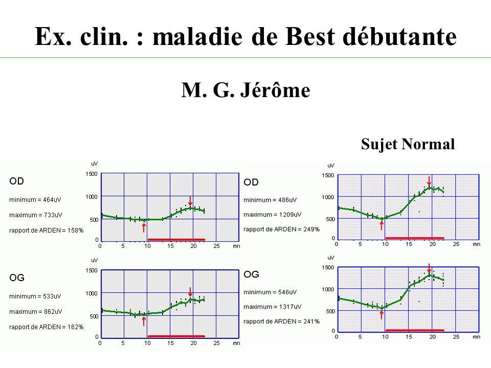 Ex. clin. : maladie de Best débutante M. G. Jérôme Sujet Normal