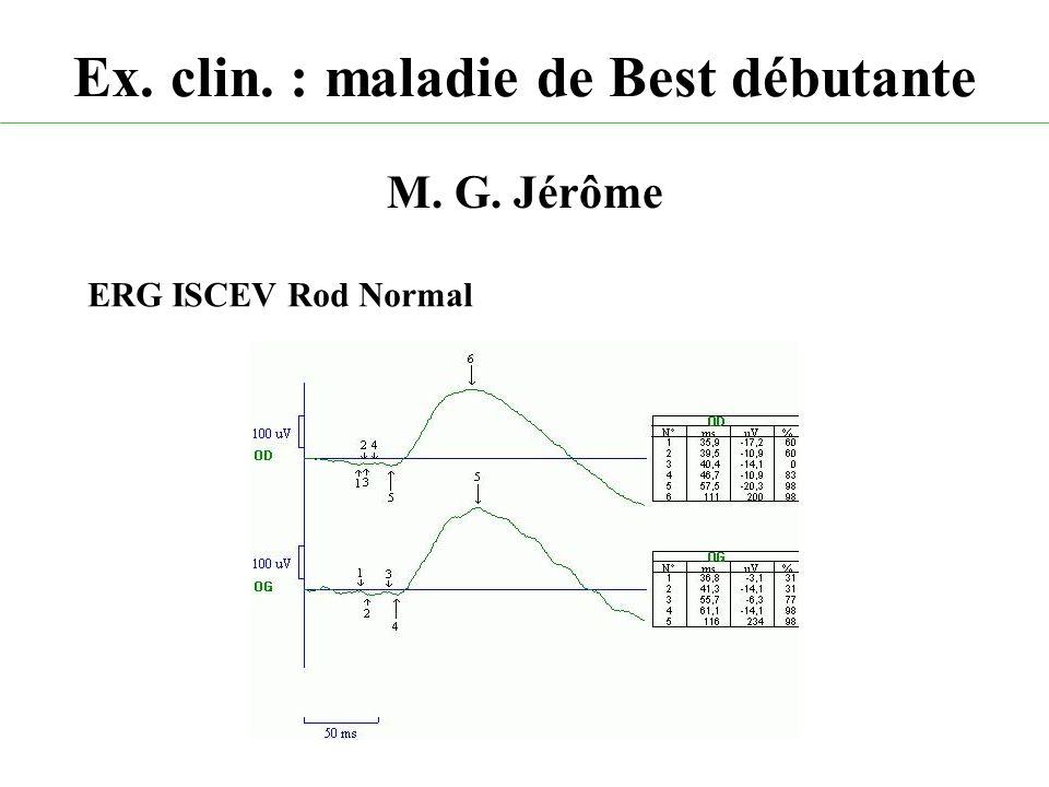 Ex. clin. : maladie de Best débutante M. G. Jérôme ERG ISCEV Rod Normal