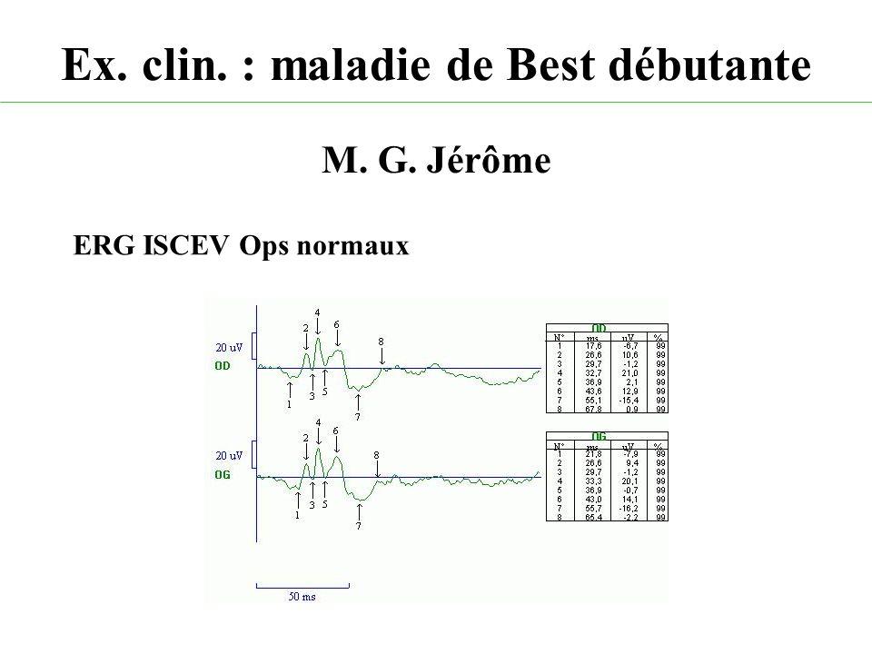 Ex. clin. : maladie de Best débutante M. G. Jérôme ERG ISCEV Ops normaux
