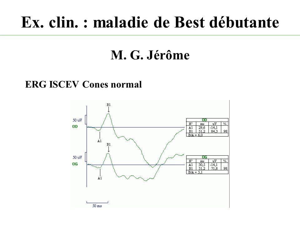 Ex. clin. : maladie de Best débutante M. G. Jérôme ERG ISCEV Cones normal