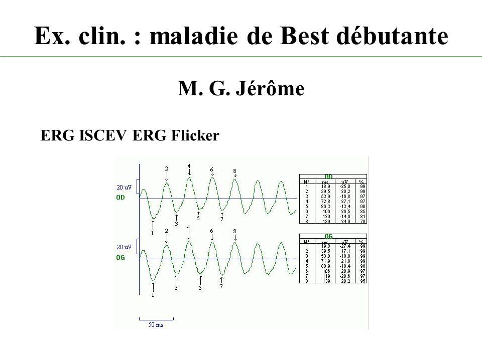 Ex. clin. : maladie de Best débutante M. G. Jérôme ERG ISCEV ERG Flicker