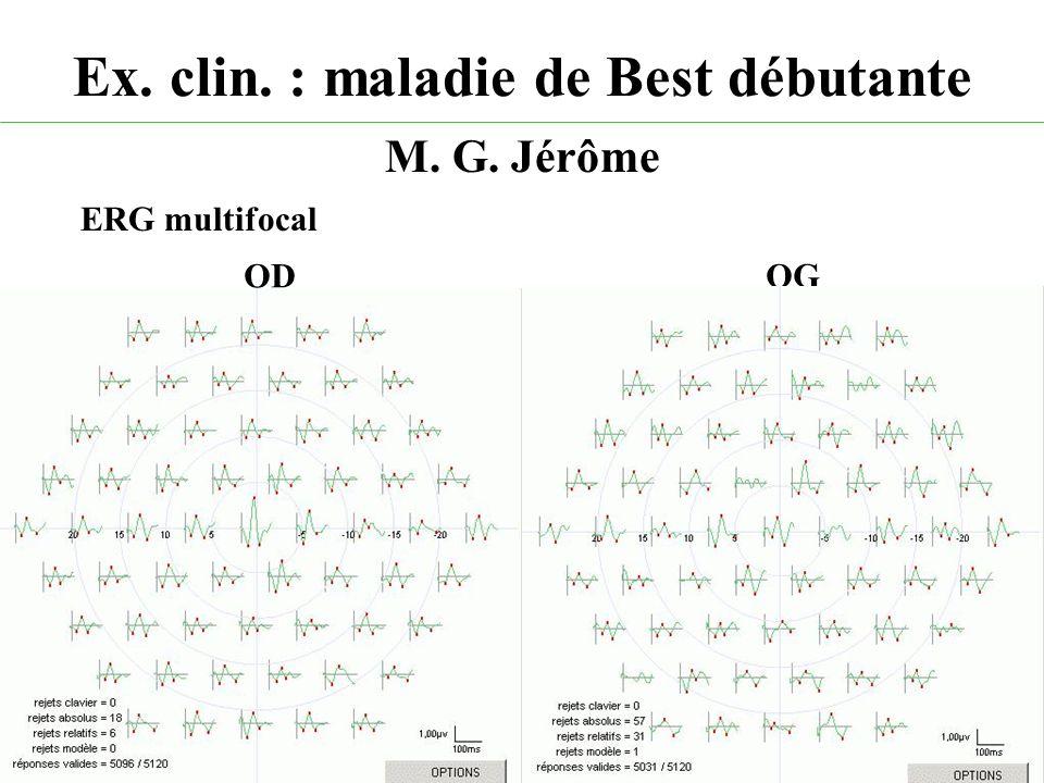 Ex. clin. : maladie de Best débutante M. G. Jérôme ODOG ERG multifocal