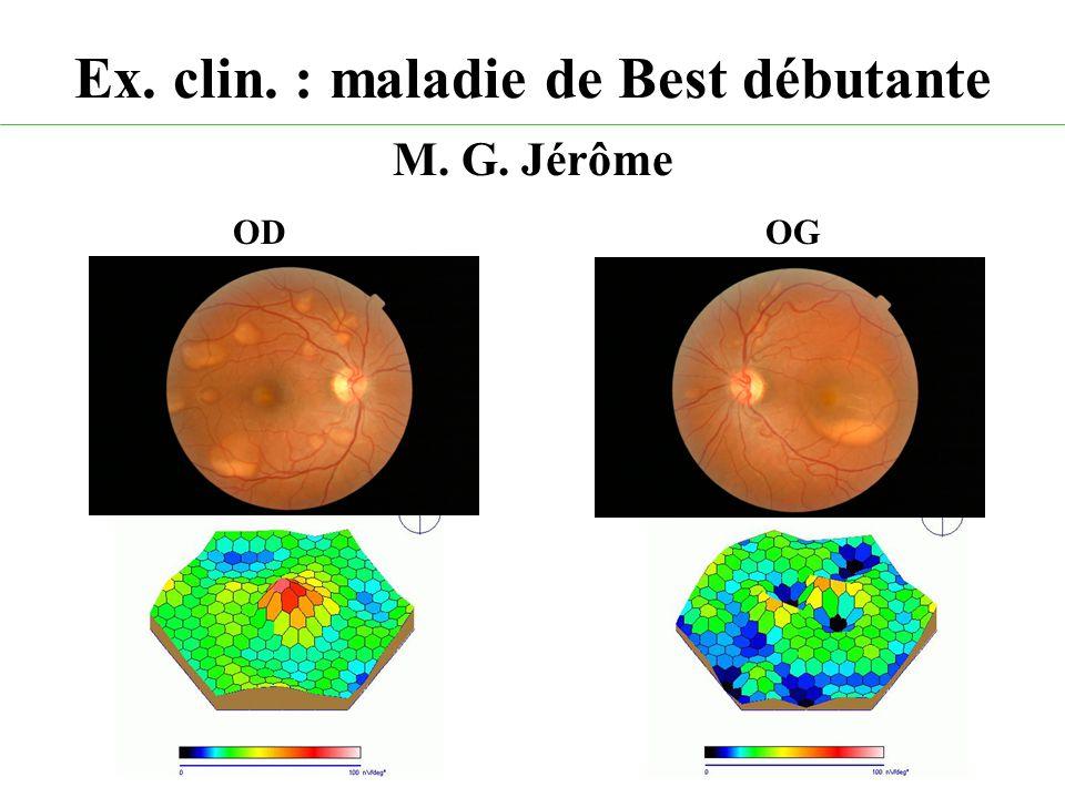 Ex. clin. : maladie de Best débutante M. G. Jérôme ODOG