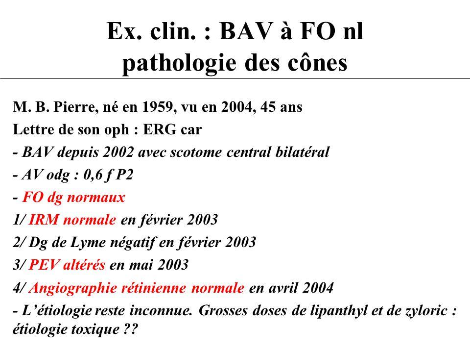 Ex. clin. : BAV à FO nl pathologie des cônes M. B. Pierre, né en 1959, vu en 2004, 45 ans Lettre de son oph : ERG car - BAV depuis 2002 avec scotome c