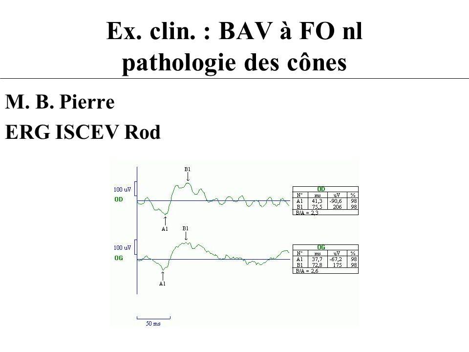 Ex. clin. : BAV à FO nl pathologie des cônes M. B. Pierre ERG ISCEV Rod