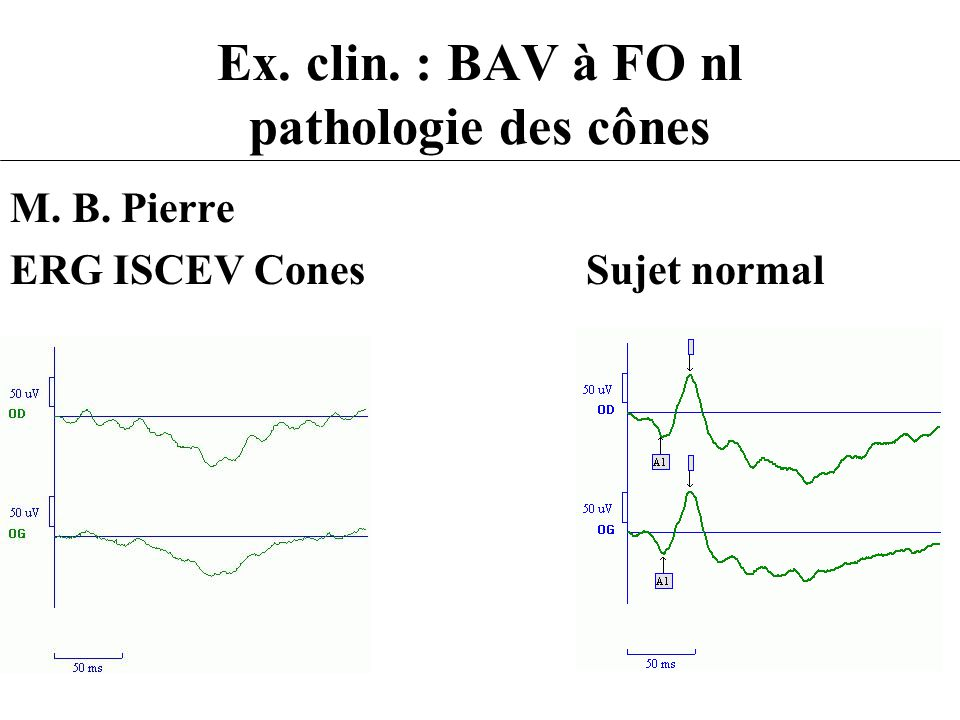 Ex. clin. : BAV à FO nl pathologie des cônes M. B. Pierre ERG ISCEV ConesSujet normal