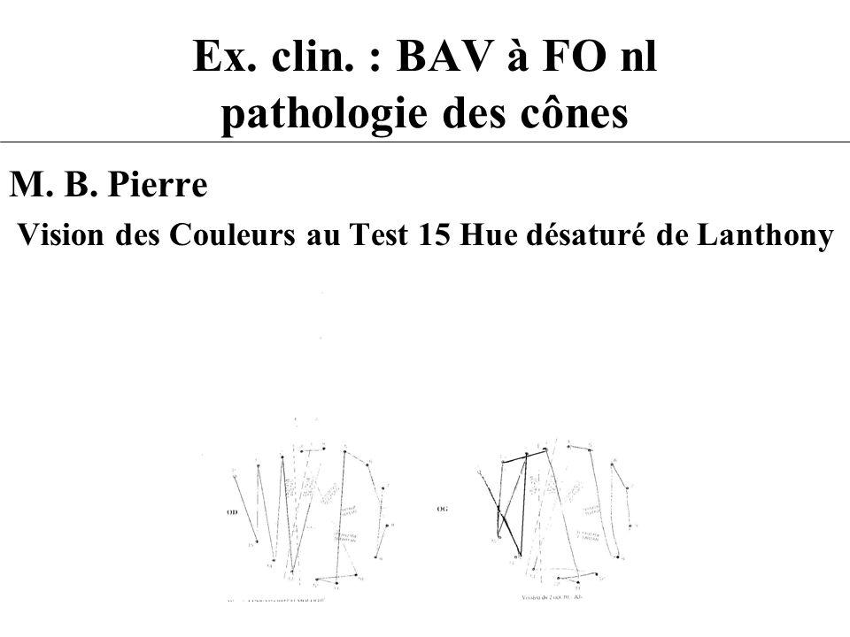 Ex. clin. : BAV à FO nl pathologie des cônes M. B. Pierre Vision des Couleurs au Test 15 Hue désaturé de Lanthony