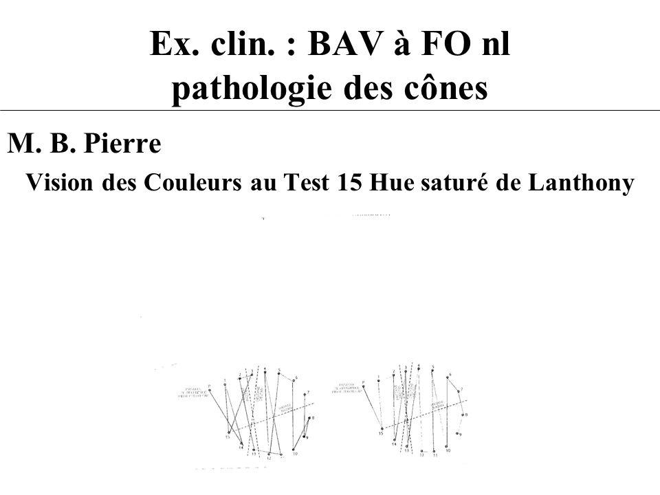 Ex. clin. : BAV à FO nl pathologie des cônes M. B. Pierre Vision des Couleurs au Test 15 Hue saturé de Lanthony
