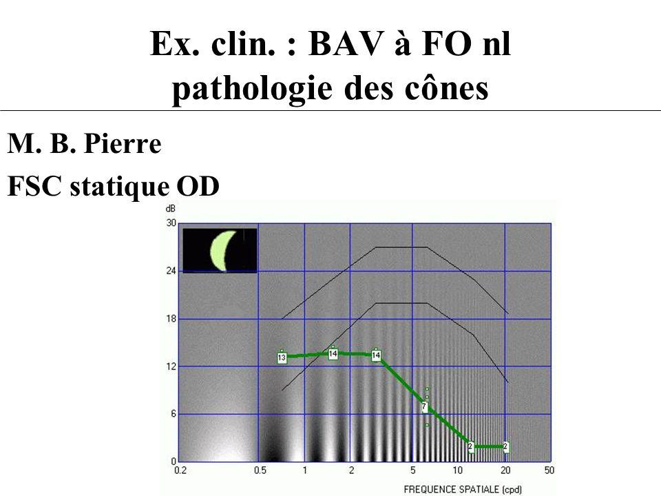 Ex. clin. : BAV à FO nl pathologie des cônes M. B. Pierre FSC statique OD