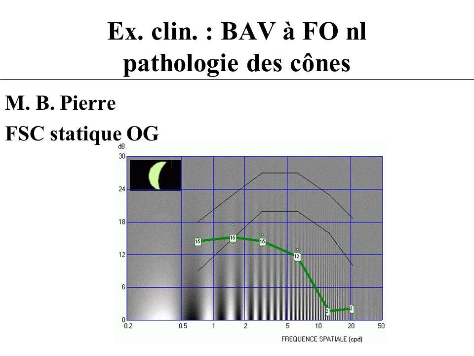 Ex. clin. : BAV à FO nl pathologie des cônes M. B. Pierre FSC statique OG