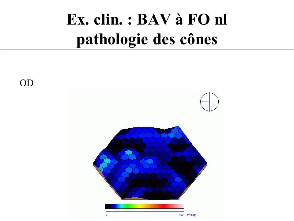 Ex. clin. : BAV à FO nl pathologie des cônes OD