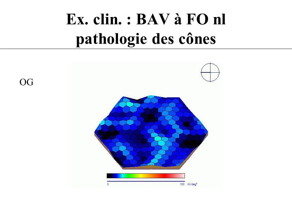 Ex. clin. : BAV à FO nl pathologie des cônes OG
