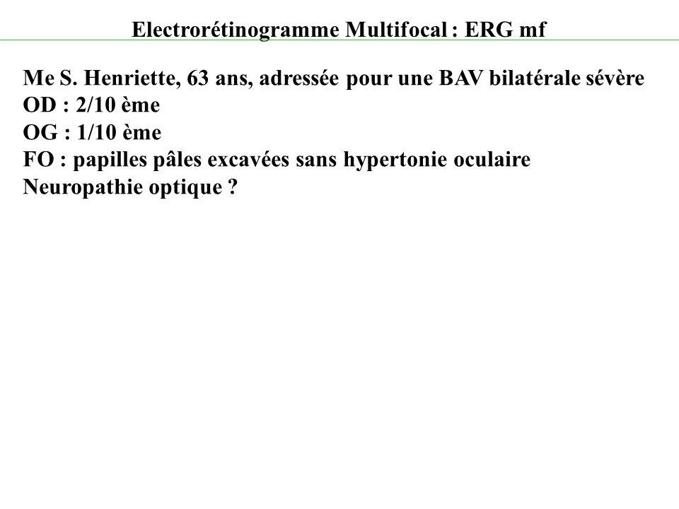 Electrorétinogramme Multifocal : ERG mf Me S. Henriette, 63 ans, adressée pour une BAV bilatérale sévère OD : 2/10 ème OG : 1/10 ème FO : papilles pâl