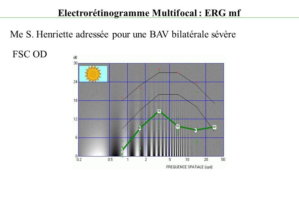 Electrorétinogramme Multifocal : ERG mf Me S. Henriette adressée pour une BAV bilatérale sévère FSC OD