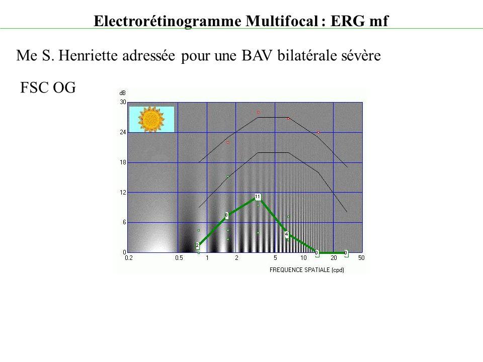 Electrorétinogramme Multifocal : ERG mf Me S. Henriette adressée pour une BAV bilatérale sévère FSC OG