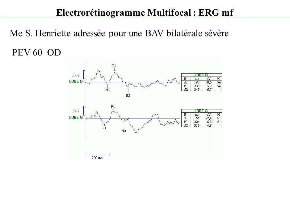 Electrorétinogramme Multifocal : ERG mf Me S. Henriette adressée pour une BAV bilatérale sévère PEV 60 OD