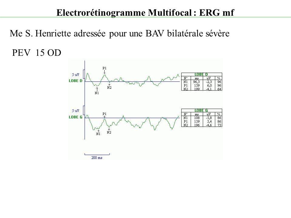 Electrorétinogramme Multifocal : ERG mf Me S. Henriette adressée pour une BAV bilatérale sévère PEV 15 OD