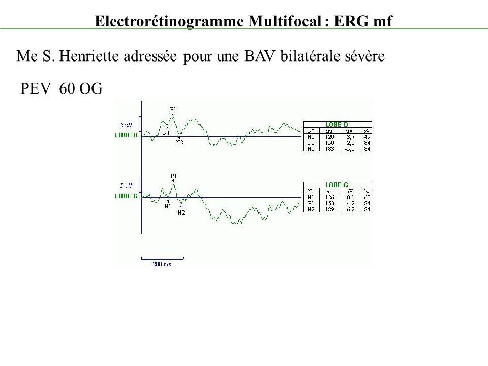 Electrorétinogramme Multifocal : ERG mf Me S. Henriette adressée pour une BAV bilatérale sévère PEV 60 OG