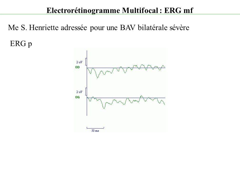 Electrorétinogramme Multifocal : ERG mf Me S. Henriette adressée pour une BAV bilatérale sévère ERG p
