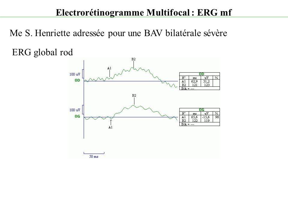 Electrorétinogramme Multifocal : ERG mf Me S. Henriette adressée pour une BAV bilatérale sévère ERG global rod