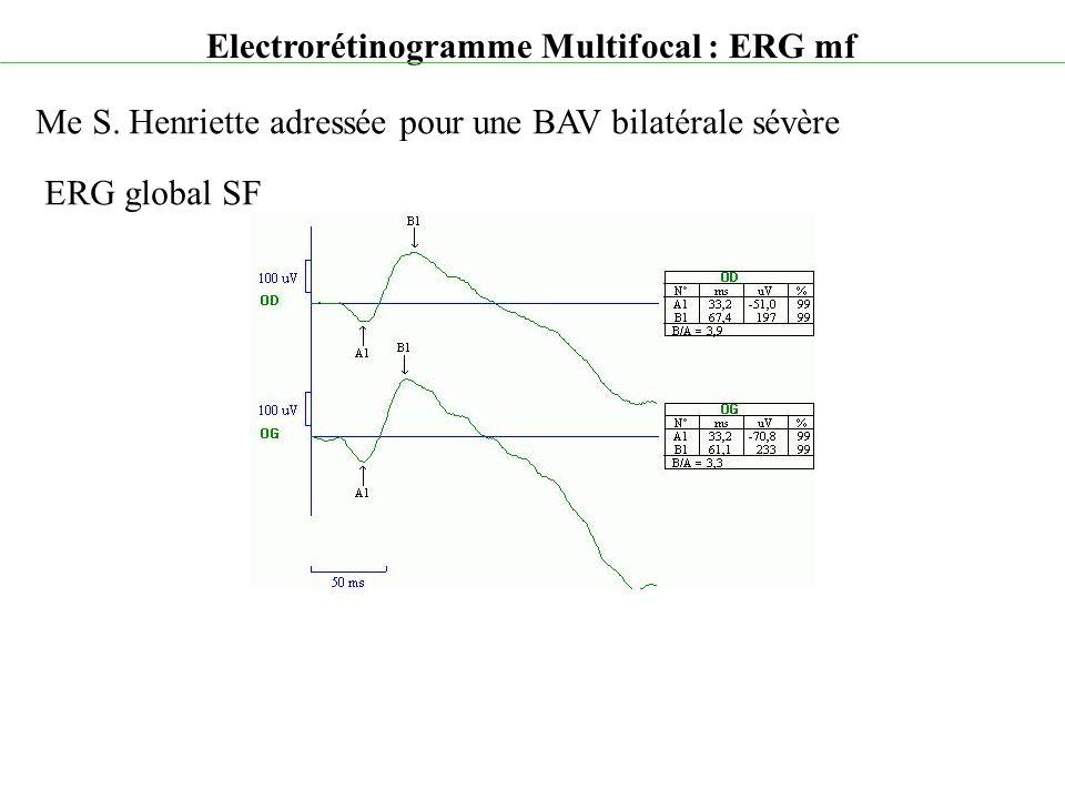 Electrorétinogramme Multifocal : ERG mf Me S. Henriette adressée pour une BAV bilatérale sévère ERG global SF