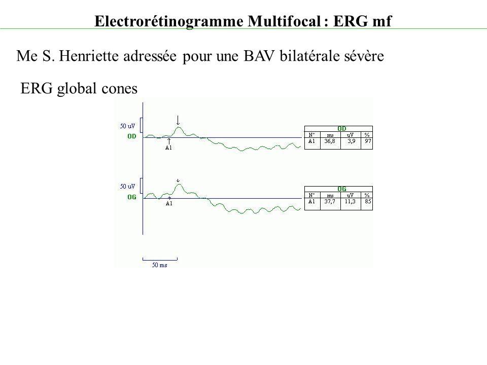 Electrorétinogramme Multifocal : ERG mf Me S. Henriette adressée pour une BAV bilatérale sévère ERG global cones