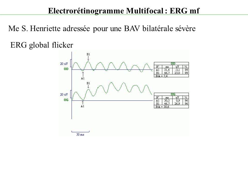Electrorétinogramme Multifocal : ERG mf Me S. Henriette adressée pour une BAV bilatérale sévère ERG global flicker