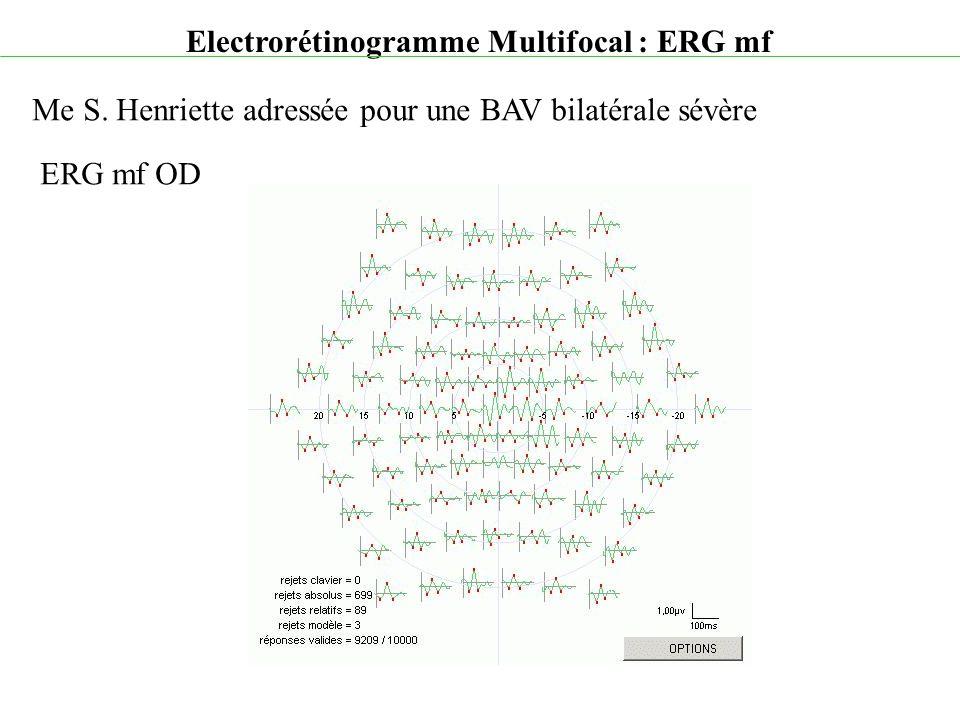 Electrorétinogramme Multifocal : ERG mf Me S. Henriette adressée pour une BAV bilatérale sévère ERG mf OD