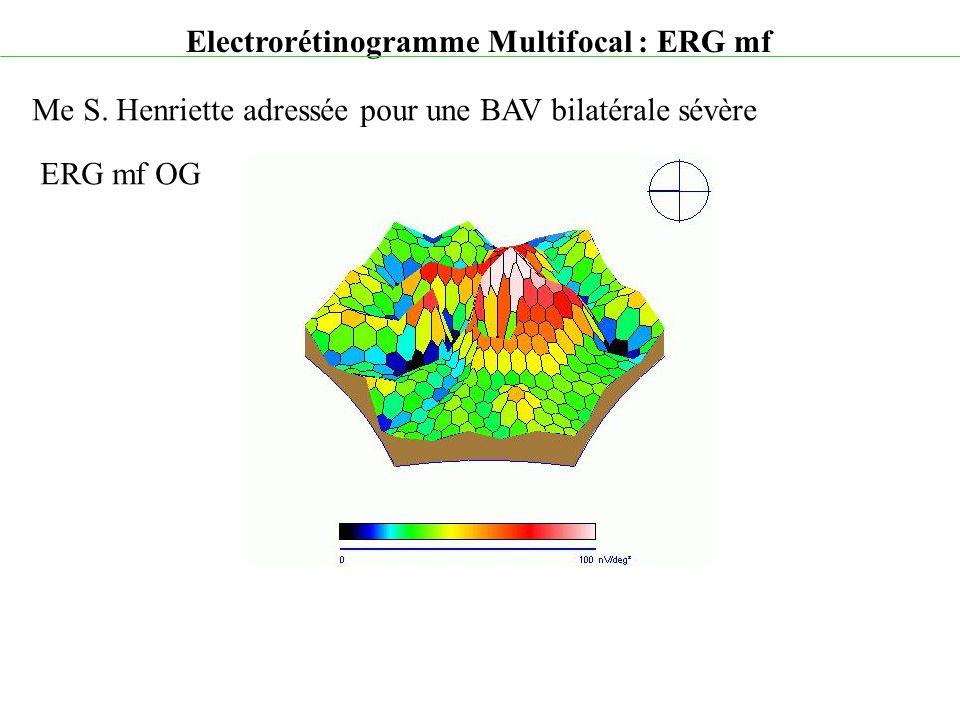 Electrorétinogramme Multifocal : ERG mf Me S. Henriette adressée pour une BAV bilatérale sévère ERG mf OG