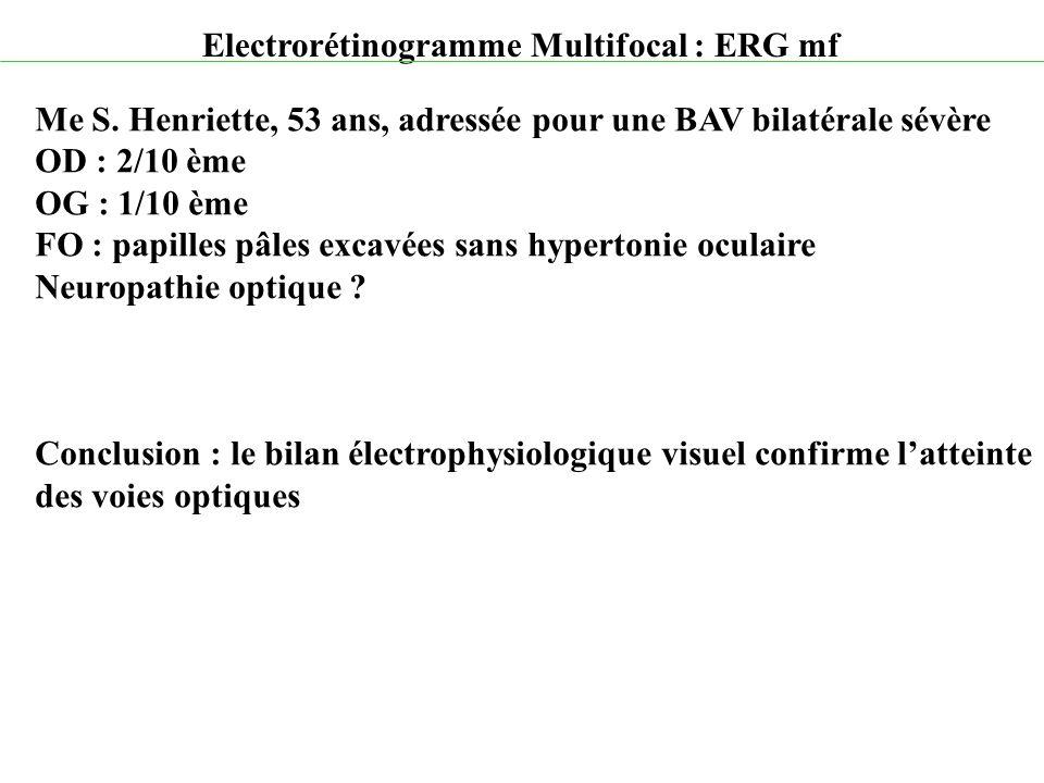 Electrorétinogramme Multifocal : ERG mf Me S. Henriette, 53 ans, adressée pour une BAV bilatérale sévère OD : 2/10 ème OG : 1/10 ème FO : papilles pâl