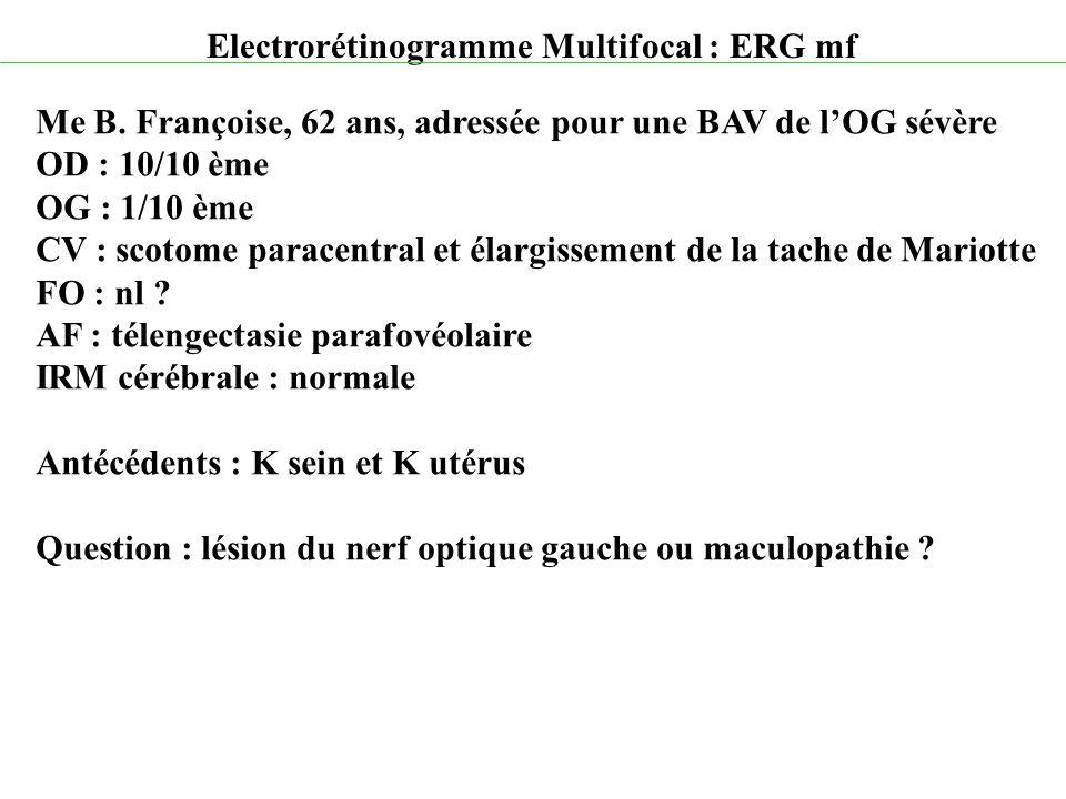 Electrorétinogramme Multifocal : ERG mf Me B. Françoise, 62 ans, adressée pour une BAV de l'OG sévère OD : 10/10 ème OG : 1/10 ème CV : scotome parace