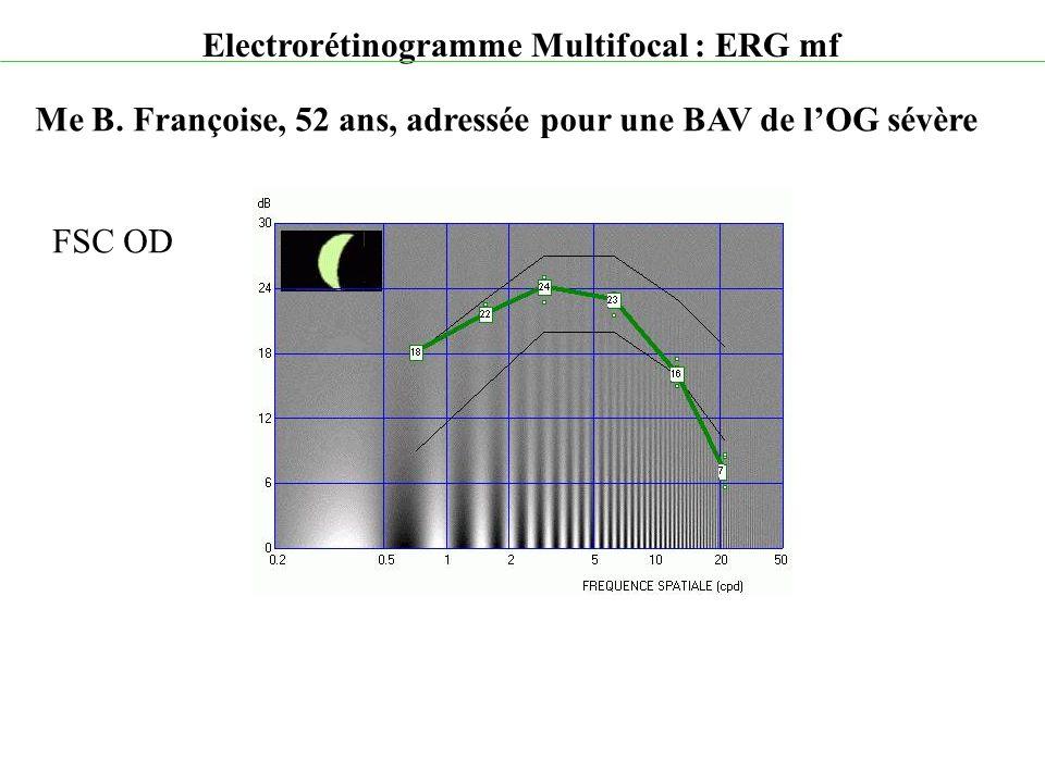 Electrorétinogramme Multifocal : ERG mf Me B. Françoise, 52 ans, adressée pour une BAV de l'OG sévère FSC OD