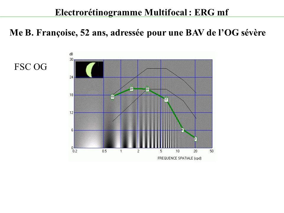 Electrorétinogramme Multifocal : ERG mf Me B. Françoise, 52 ans, adressée pour une BAV de l'OG sévère FSC OG