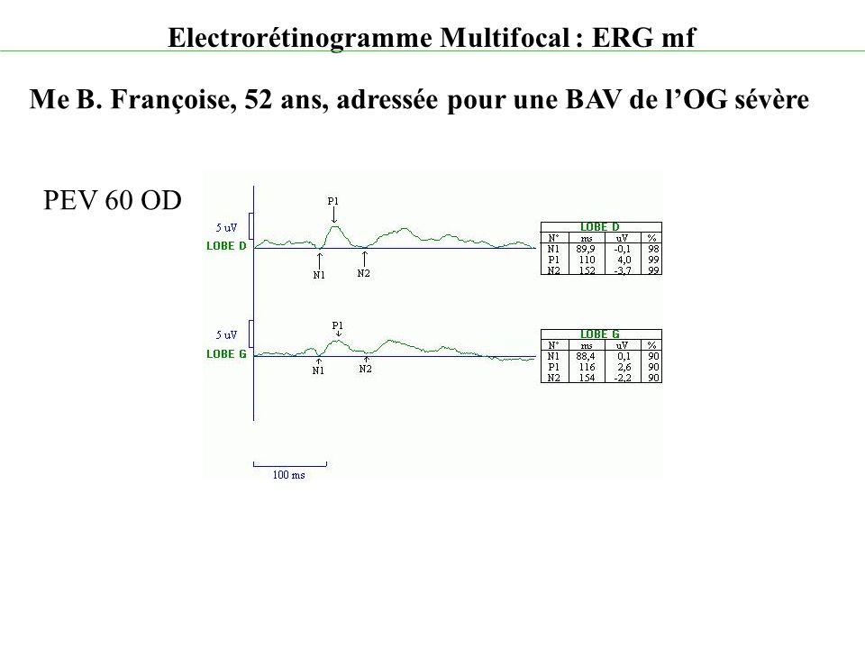 Electrorétinogramme Multifocal : ERG mf Me B. Françoise, 52 ans, adressée pour une BAV de l'OG sévère PEV 60 OD