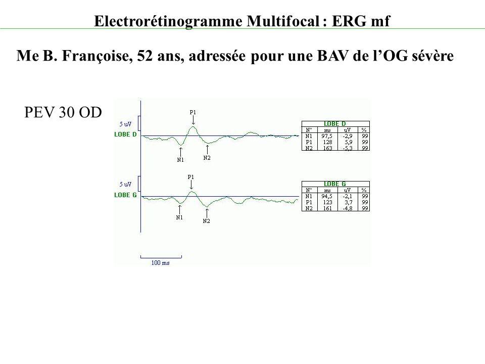 Electrorétinogramme Multifocal : ERG mf Me B. Françoise, 52 ans, adressée pour une BAV de l'OG sévère PEV 30 OD