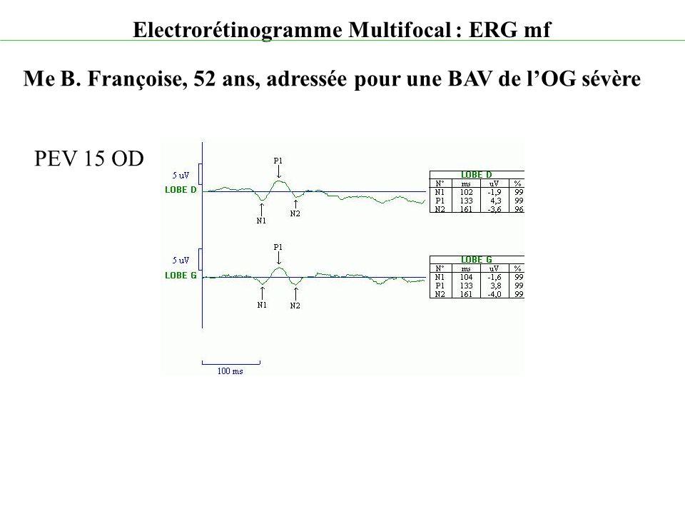 Electrorétinogramme Multifocal : ERG mf Me B. Françoise, 52 ans, adressée pour une BAV de l'OG sévère PEV 15 OD