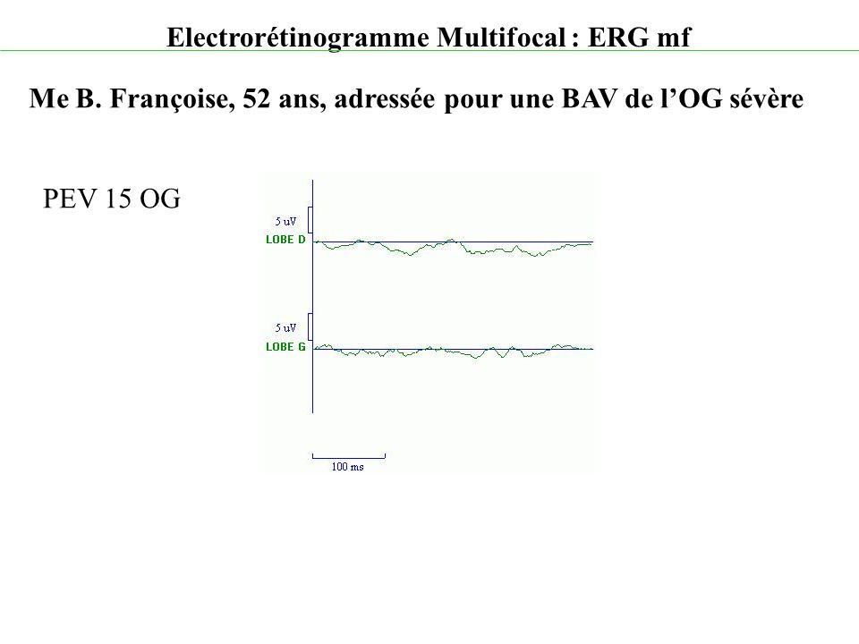 Electrorétinogramme Multifocal : ERG mf Me B. Françoise, 52 ans, adressée pour une BAV de l'OG sévère PEV 15 OG