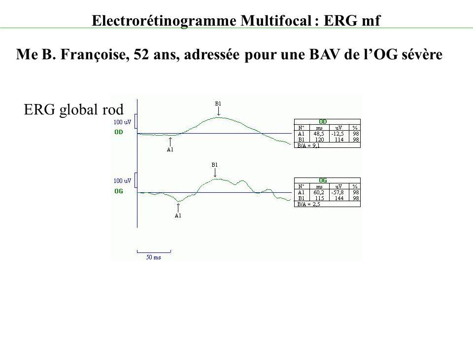 Electrorétinogramme Multifocal : ERG mf Me B. Françoise, 52 ans, adressée pour une BAV de l'OG sévère ERG global rod