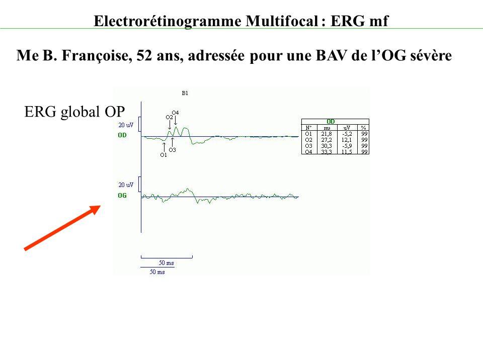 Electrorétinogramme Multifocal : ERG mf Me B. Françoise, 52 ans, adressée pour une BAV de l'OG sévère ERG global OP