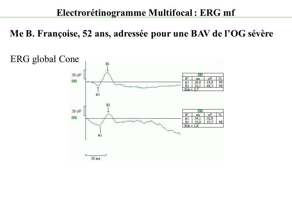 Electrorétinogramme Multifocal : ERG mf Me B. Françoise, 52 ans, adressée pour une BAV de l'OG sévère ERG global Cone