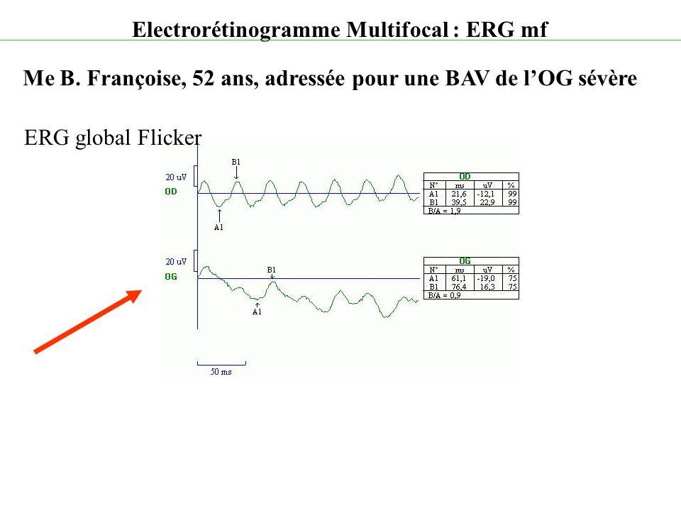 Electrorétinogramme Multifocal : ERG mf Me B. Françoise, 52 ans, adressée pour une BAV de l'OG sévère ERG global Flicker