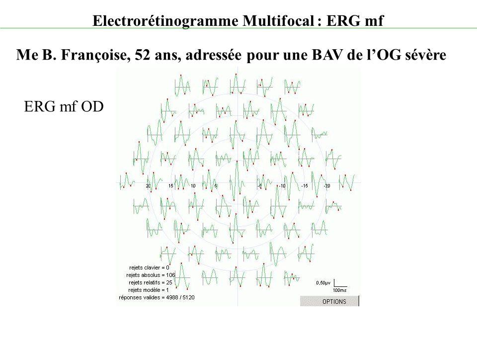Electrorétinogramme Multifocal : ERG mf Me B. Françoise, 52 ans, adressée pour une BAV de l'OG sévère ERG mf OD