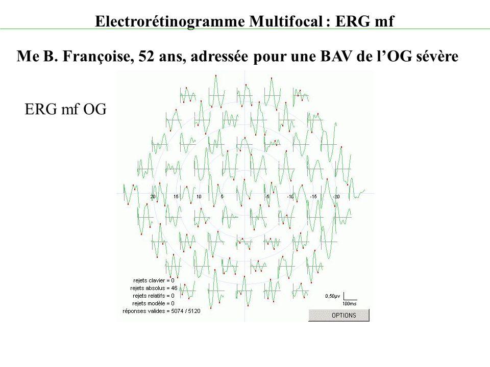 Electrorétinogramme Multifocal : ERG mf Me B. Françoise, 52 ans, adressée pour une BAV de l'OG sévère ERG mf OG