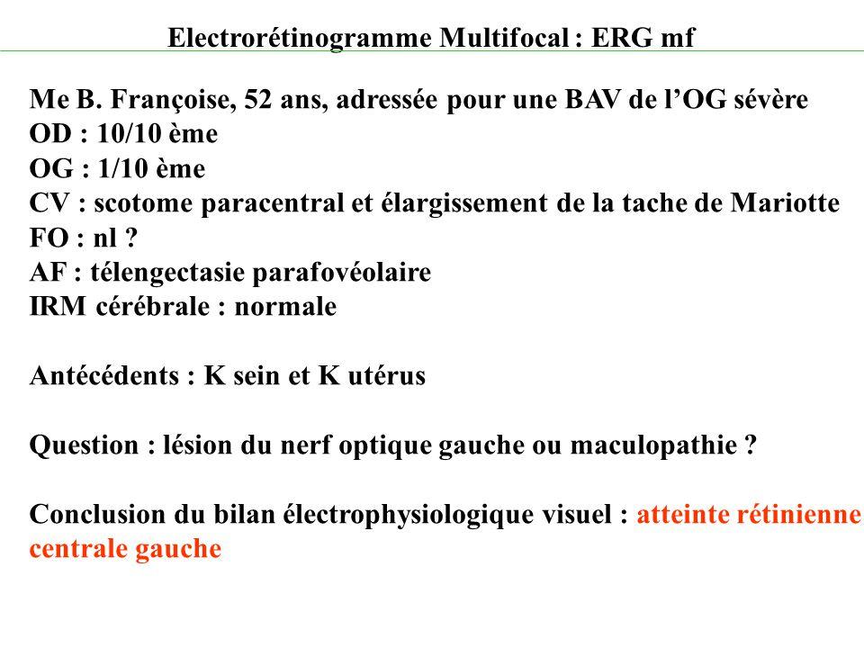 Electrorétinogramme Multifocal : ERG mf Me B. Françoise, 52 ans, adressée pour une BAV de l'OG sévère OD : 10/10 ème OG : 1/10 ème CV : scotome parace