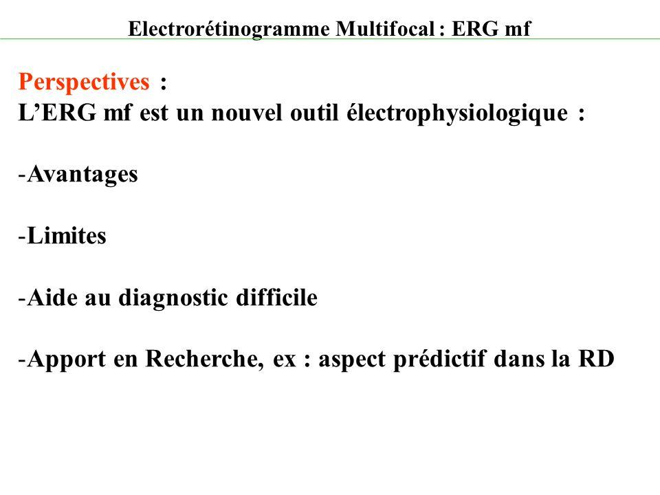 Electrorétinogramme Multifocal : ERG mf Perspectives : L'ERG mf est un nouvel outil électrophysiologique : -Avantages -Limites -Aide au diagnostic dif