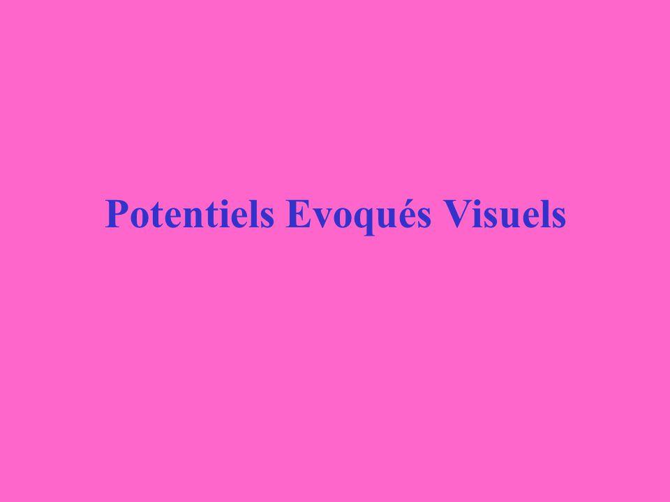 Potentiels Evoqués Visuels