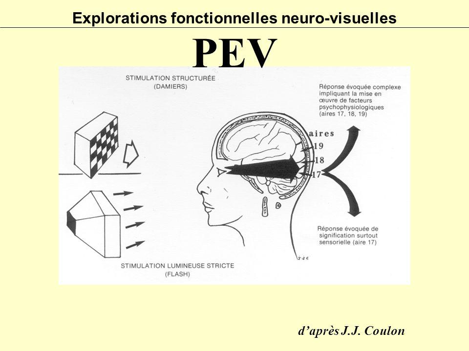 Explorations fonctionnelles neuro-visuelles PEV d'après J.J. Coulon